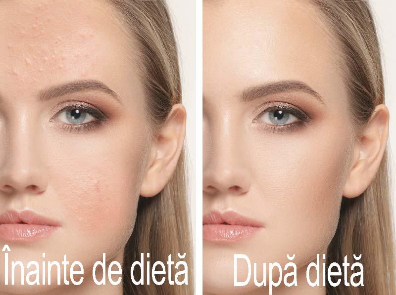 acneea inainte si dupa tinerea unei diete