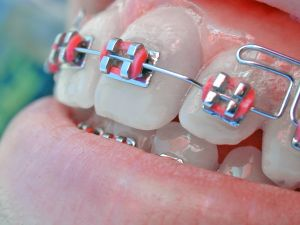 aparat-dentar-Incognito