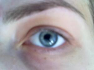 sanatatea ochilor