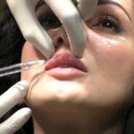 Despre Botox cu Dr. Elena Marinache