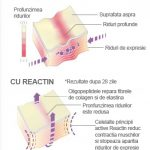 Reactin la farmacii