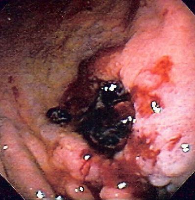 Tumorile si ulceratiile, o cauza a hemoragiilor gastro-intestinale