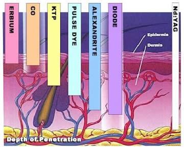 epilare-definitiva-laser