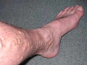 Varice în picioare: simptome și tratament - Aritmie April
