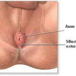 Hemoroizii: tratament sau operatie?