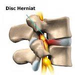 Care sunt riscurile operaţiei de hernie de disc?