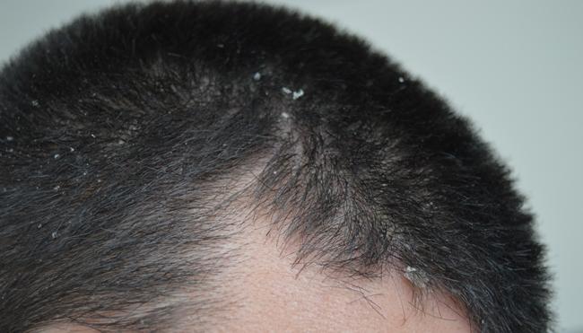 dermatita - matreata