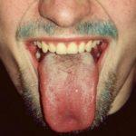 Limba Alba: Cauze si Tratament