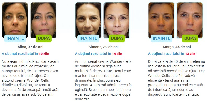 Wonder Cells Comentarii