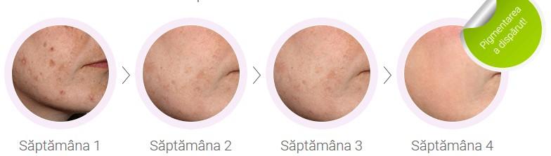 Collagena Lumiskin Efecte