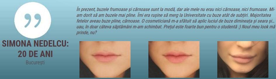 City Lips Pro Rezultate