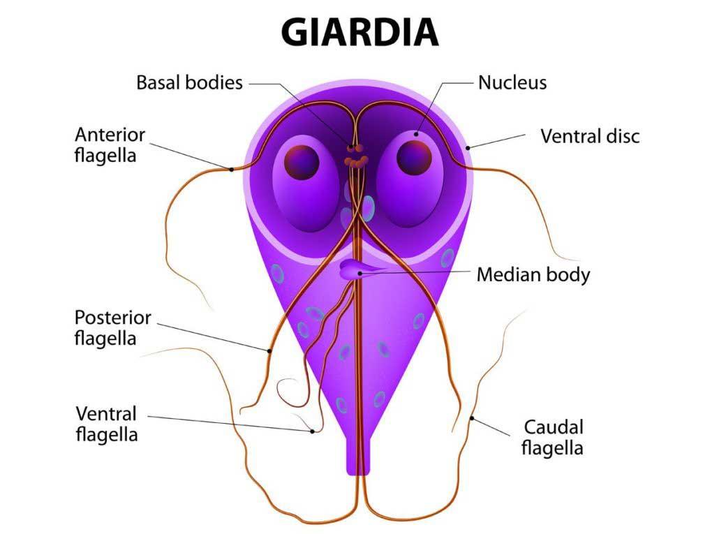 Giardiaza