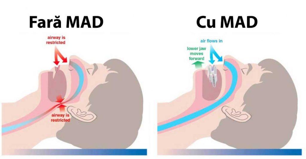 apnee-Mandibular-Advancement-Device