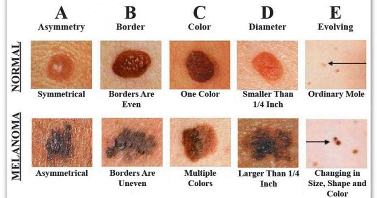 cancer-piele