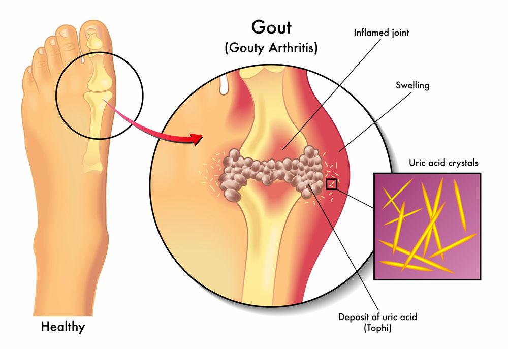 guta-tratament-laser