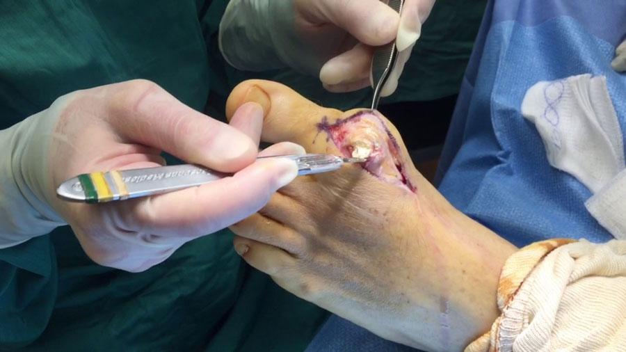 operatie-guta