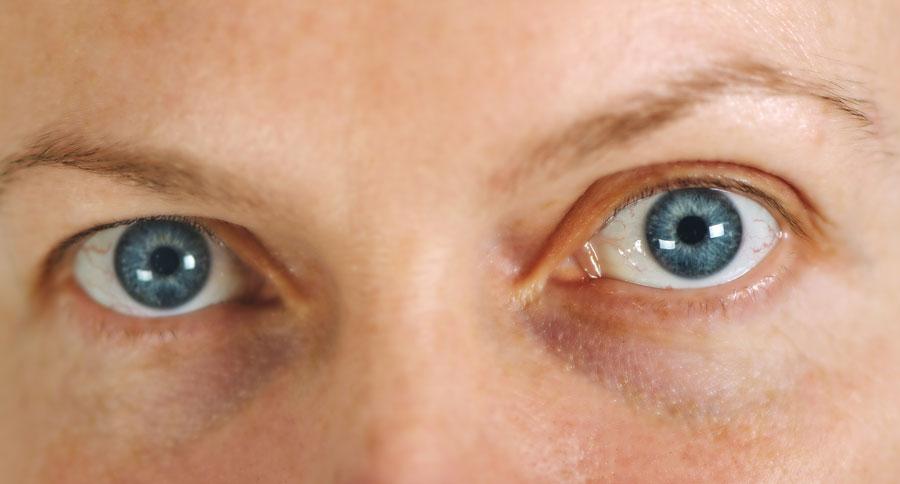 pupile-dilatate