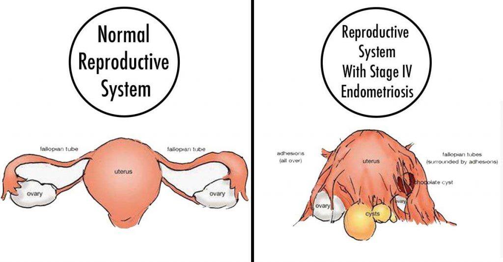 Endometrioza-ir