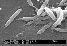 Helicobacter-cauze-pareri