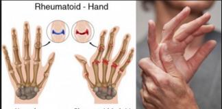 Poliartrita Reumatoidă la maini