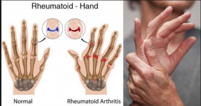 artrita reumatoidă tratată acasă osteocondroza unguentului lombar