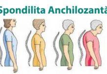 Spondilita-anchilozanta-simptome