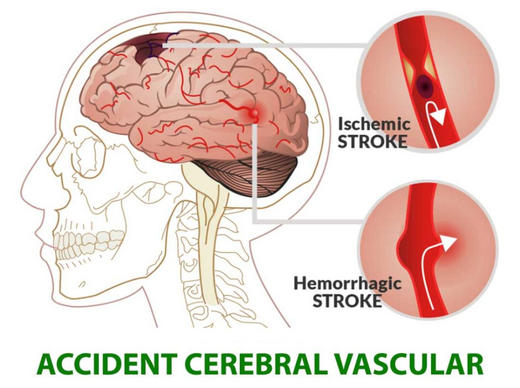 accident-vascular-cerebral