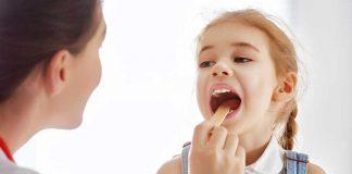 amigdalita-la-copii