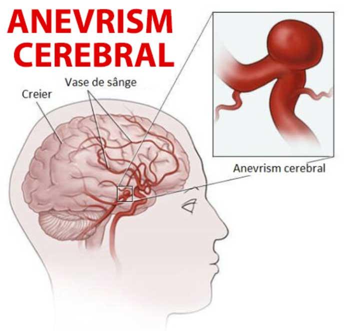 anevrism-cerebral
