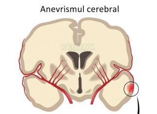 anevrismul-cerebral
