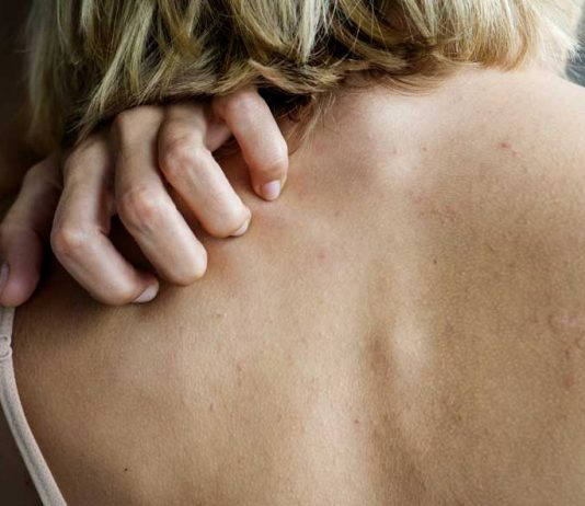 dermatita-de-contact