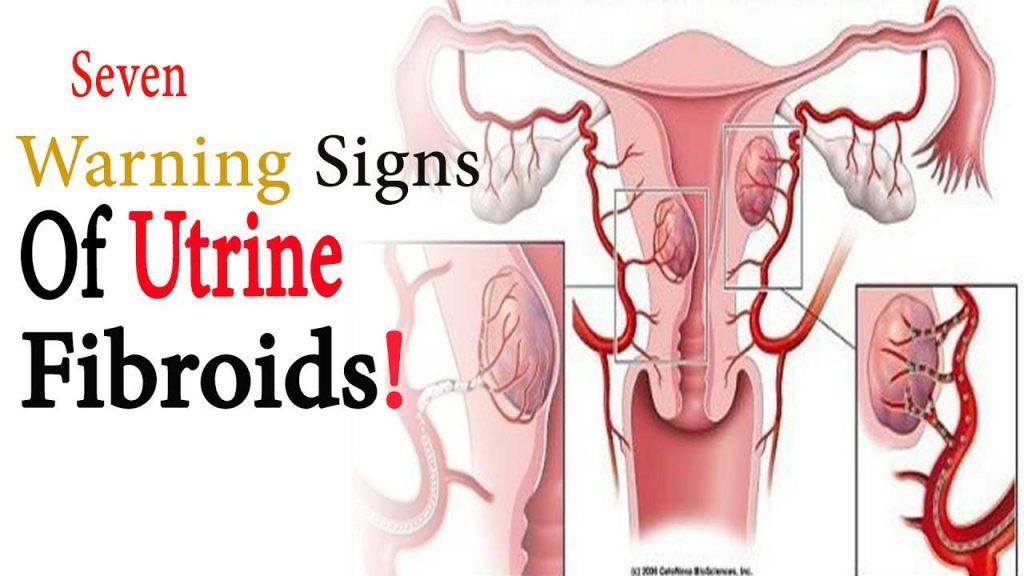 pierderea în greutate după îndepărtarea fibroamelor uterine
