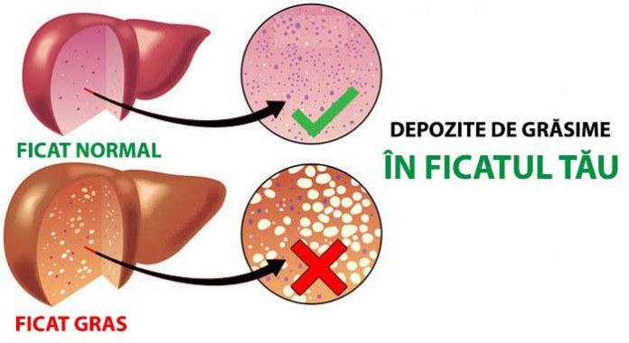 Diagnosticarea ficatului gras | Polaris Medical