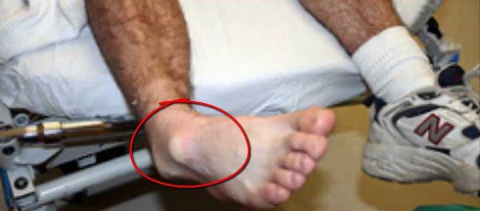 glezna-dislocata
