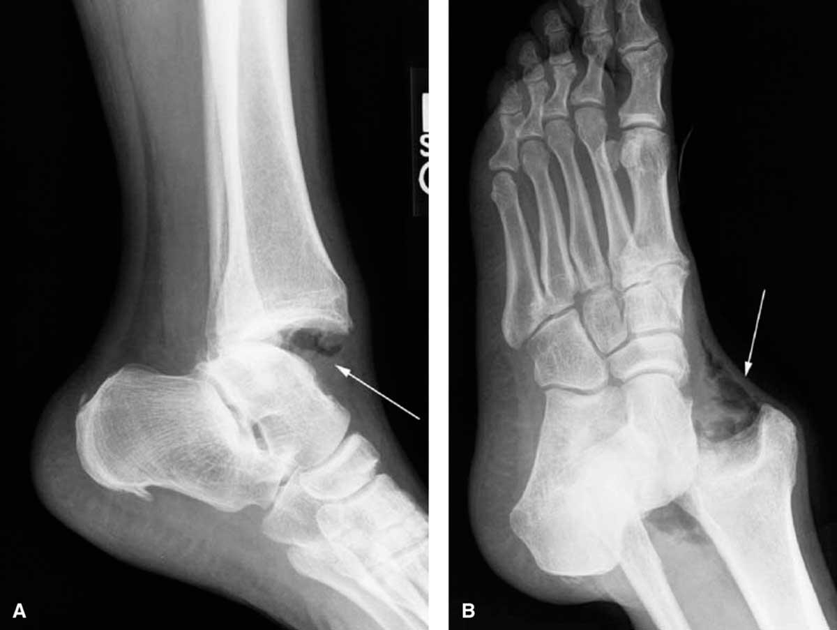 glezna-dislocata-radiografie