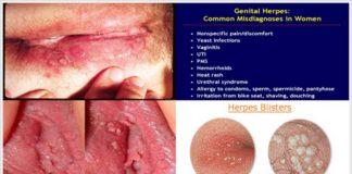 herpes-genital-tratament