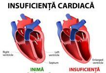 insuficienta-cardiaca
