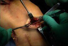 operatie-de-menis