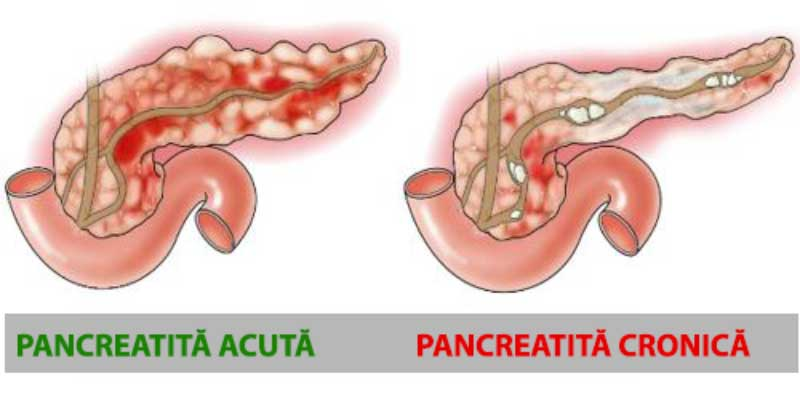 pancreatita-acuta-vs-cronica