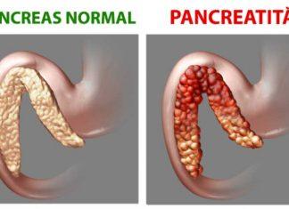 pancreatita-normala