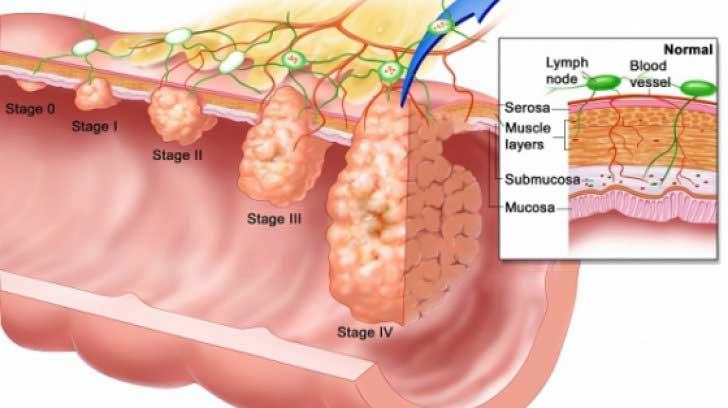 polipi-pe-colon-cancer