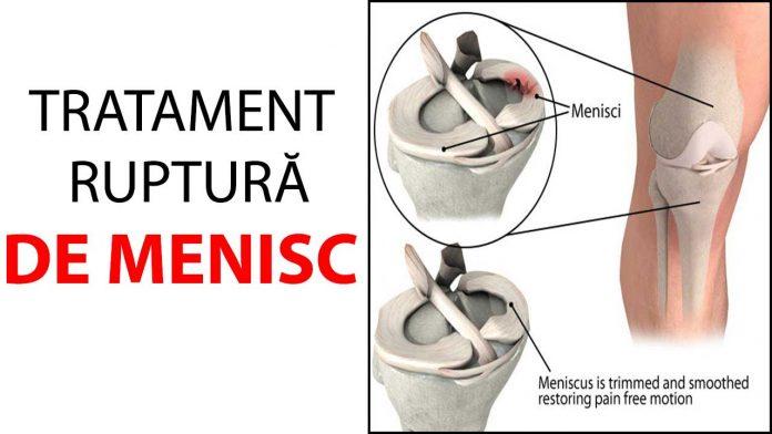 tratament de osteoparoză articulară