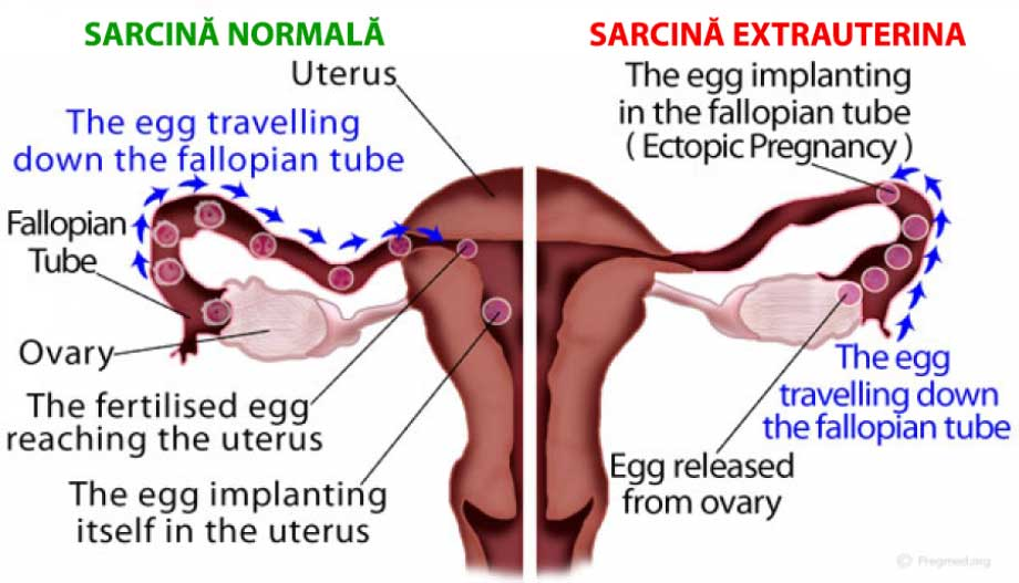 sarcina-extrauterina