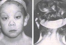 sindromul-Turner