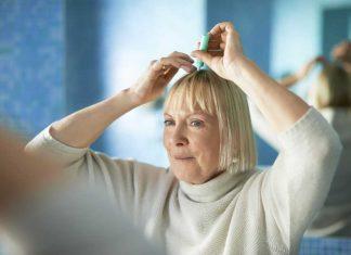 tratament-dermatita-seboreica