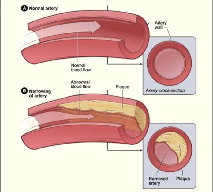 Ateroscleroza