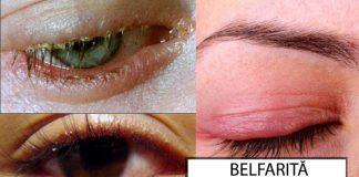 Blefarita-cauz-tratament