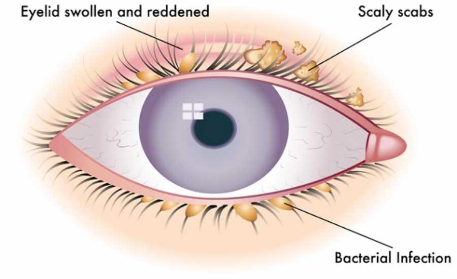 vedere la blefarită