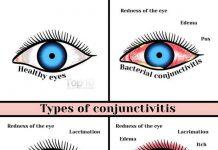 Conjunctivita-imagini