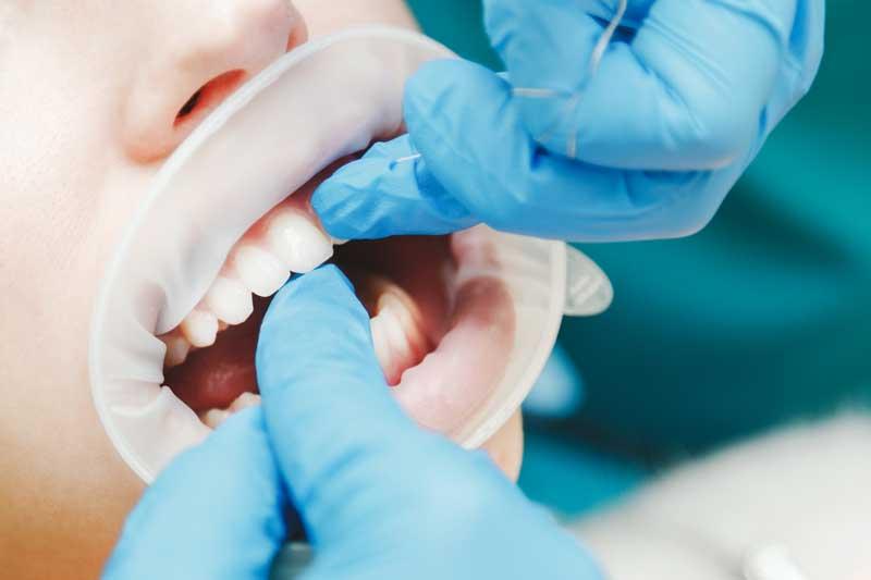 Denta-Seal-pentru-albirea-dintilor